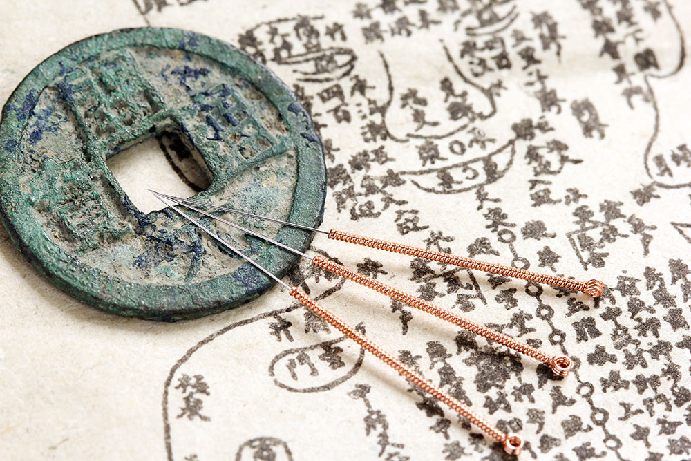 Taunton Traditional Acupuncture